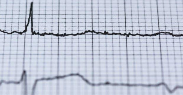 Hartslag Bloeddruk Smartwatch